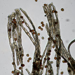 Gymnosporangium sabinae peridial ceells and spores_1000