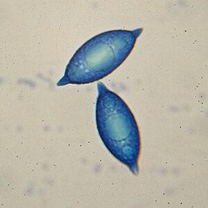 Gyromitra ancilis spores_1000