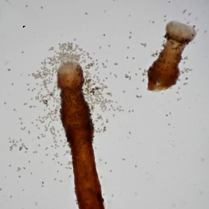 Melanospora lagenaria spores_1000