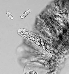 Arthonia radiata ascus x 600