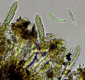 Lecanactis abietina asci & spores x 400