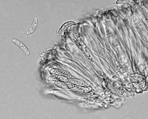 Lecania cyrtella ascus & spores x 400