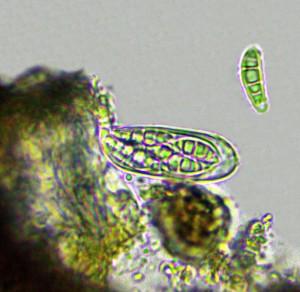 Opegrapha varia ascus & spore x 400
