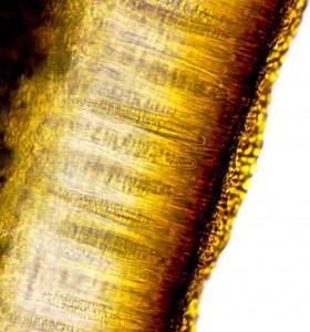 Peltigera didactyla ascus x 400