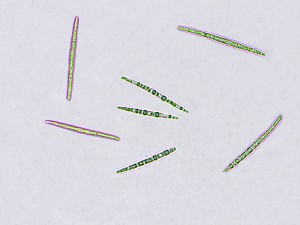 Peltigera didactyla spores x 400