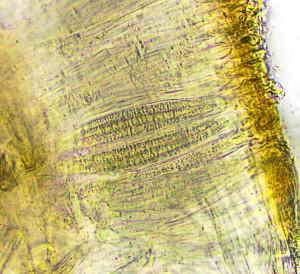 Peltigera hymenina ascus  x 400