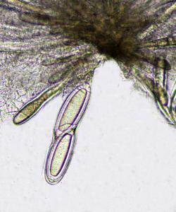 Pertusaria pertusa ascus x400
