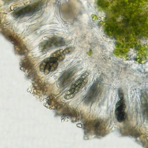 Physcia airpolia apothecia section with spores x400
