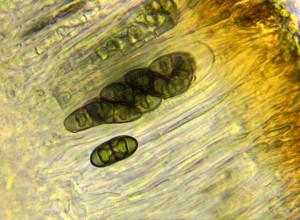 Physcia stellaris ascus & spores x 400