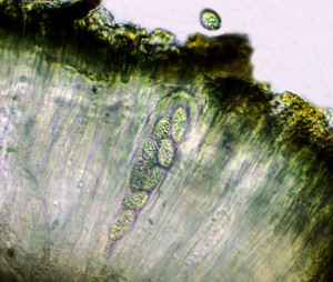 Porpidia maculatum ascus x 400