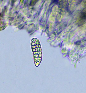 Rhizocarpon petraeum spore x 400
