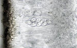 Xanthoria parietina ascus x600