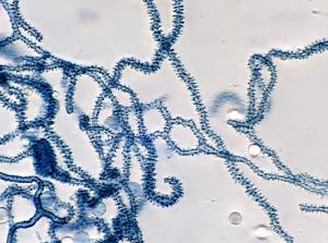 Arcyria cinerea capillitium Lactic Blue