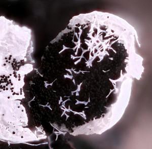 Badhamia foliicola capillitium