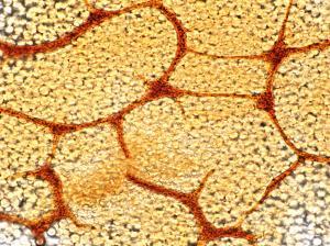 Cribraria argillacea net x600 1000