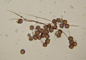 Diderma spumarioides capillitium