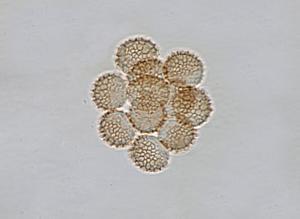 Reticularia lycoperdon spores