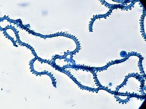 Arcyria denudata capillitium