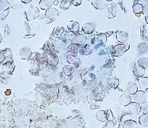perideum 1000x in lactic blue