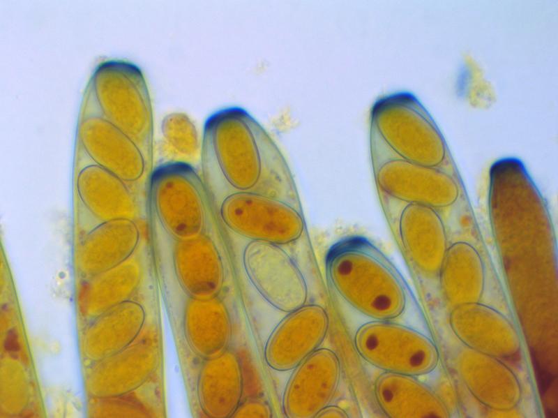 Peziza vesiculosa (Baral's Iodine) x 1000